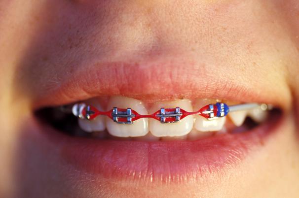 Tandlægeskræk i København